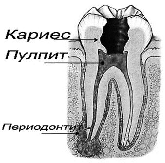 http://zabolekar-ralev.com/wp-content/uploads/2012/10/Periodontit-lechenie.jpg